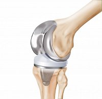 HQ_ILL_Complete_Knee_Components.jpg_ico500